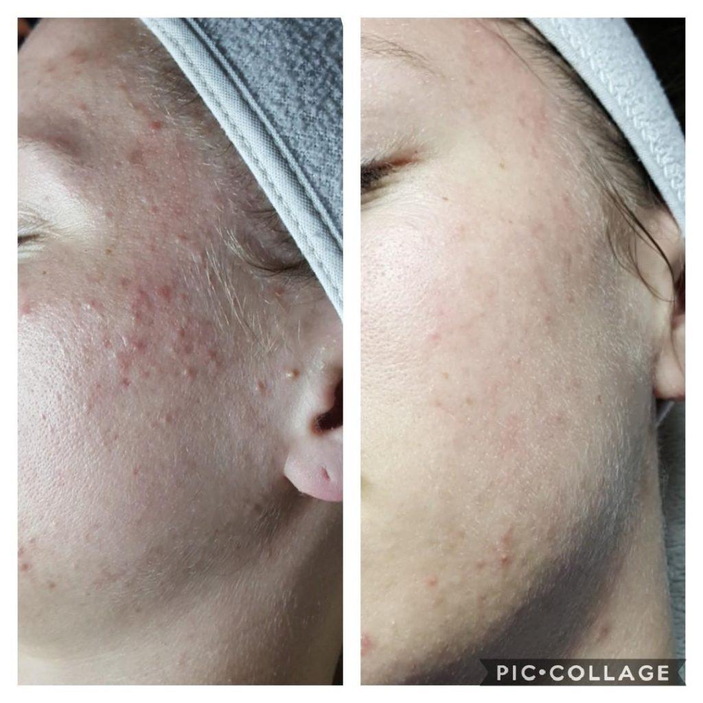 Spa De La Rose - Professions skin treatment